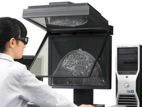 Real-3D-Mammography