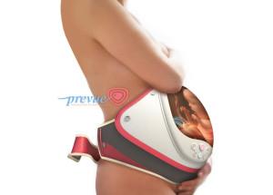 prevue-4d-ultrasound1