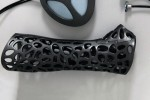 3Dプリンターで印刷、着脱可能な金属製ギプス